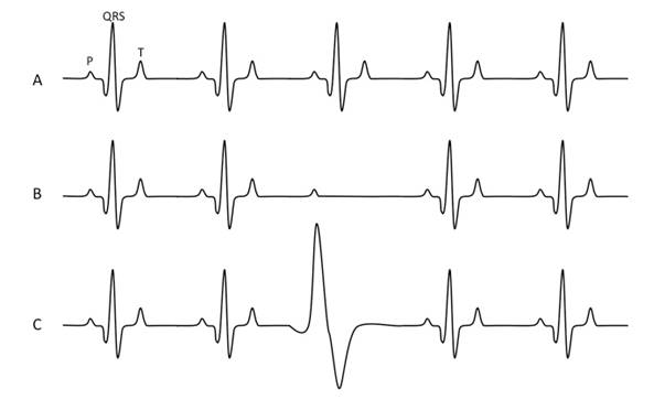 ECG Waves form